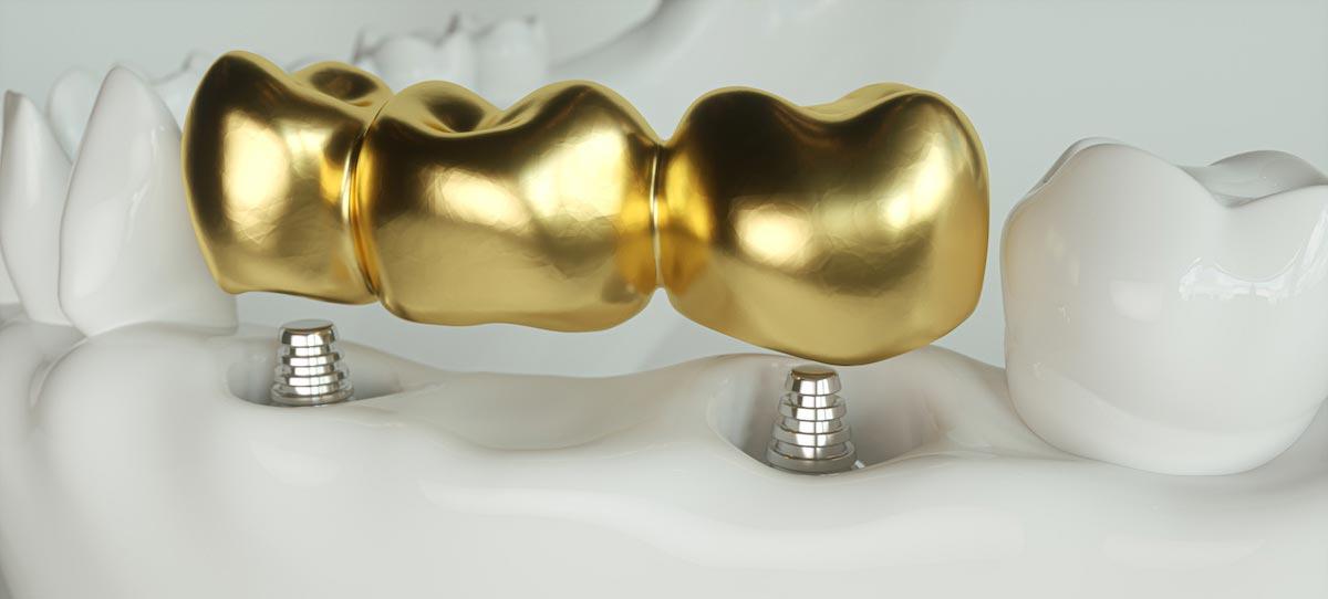 Goldene Stiftzähne